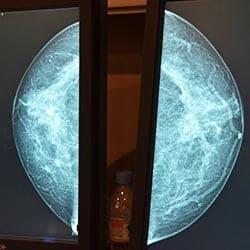 Mammographie paris echographie paris impc femme enfant irm scanner radiologie centre imagerie medicale paris photo mammographie