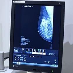 Mammographie paris tomosynthese paris impc bachaumont femme enfant irm scanner radiologie centre imagerie medicale paris photo tomosynthese